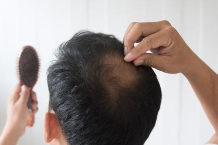 Various causes and reasons for hair loss
