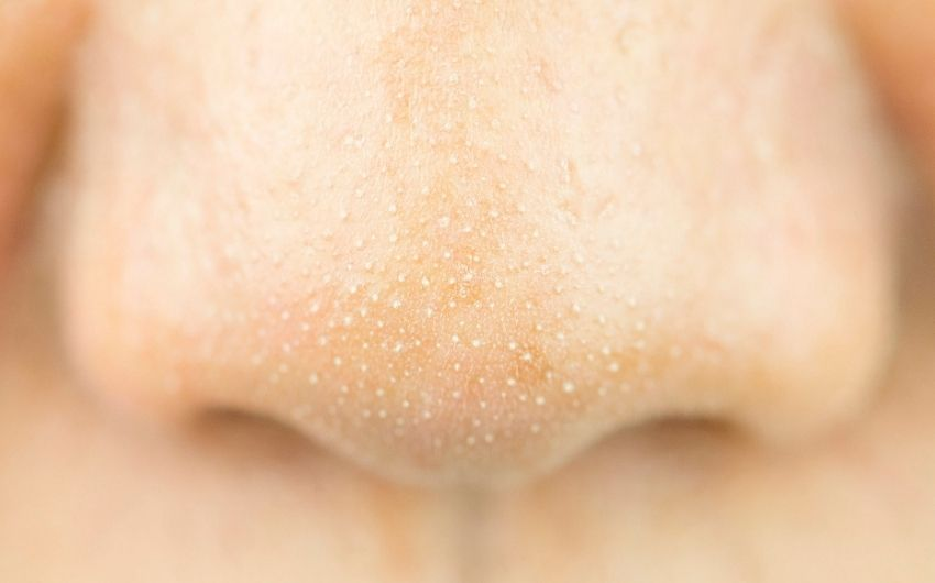 Want to Know about Whiteheads on Nose