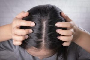 It can be used as a soothing scalp mask
