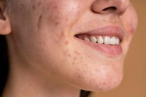 May aid in the healing of acne