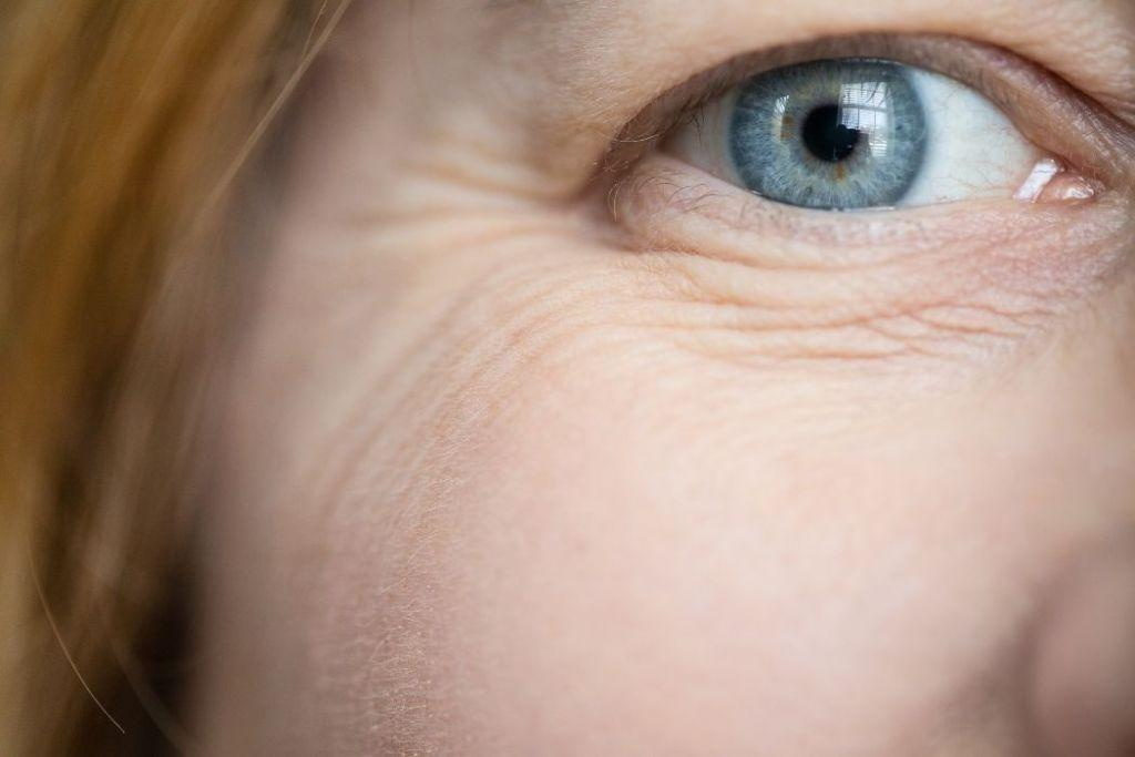 How to Remove Wrinkles Under Eyes