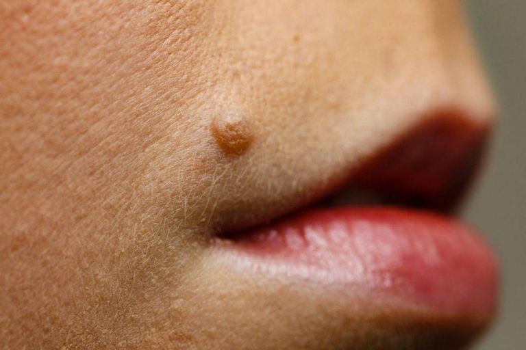 Home Remedies To Get Rid Of Moles On Your Face