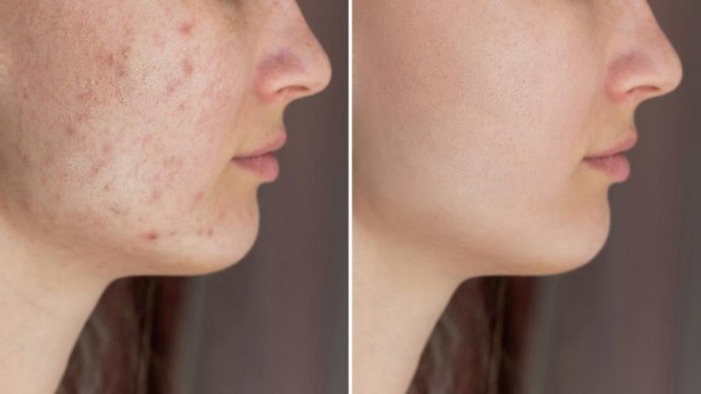 How To Remove Red Spots On Face